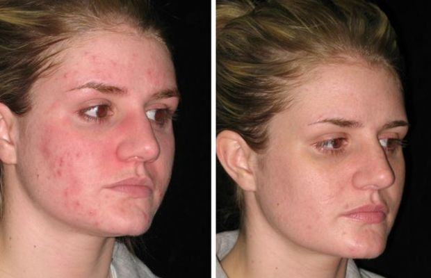 Isolaz-acne-treatment-before-and-after