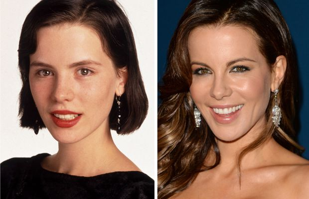 Kate Beckinsale before and after