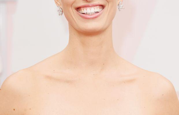 Karolina Kurkova, Oscars 2015