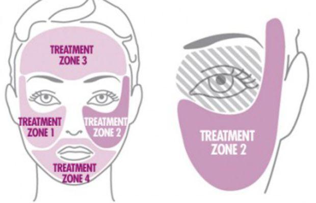 Tria Skin Rejuvenating Laser Treatment Zones