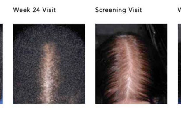 Rogaine for Women (before and after)