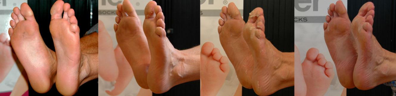 Footner foot peel