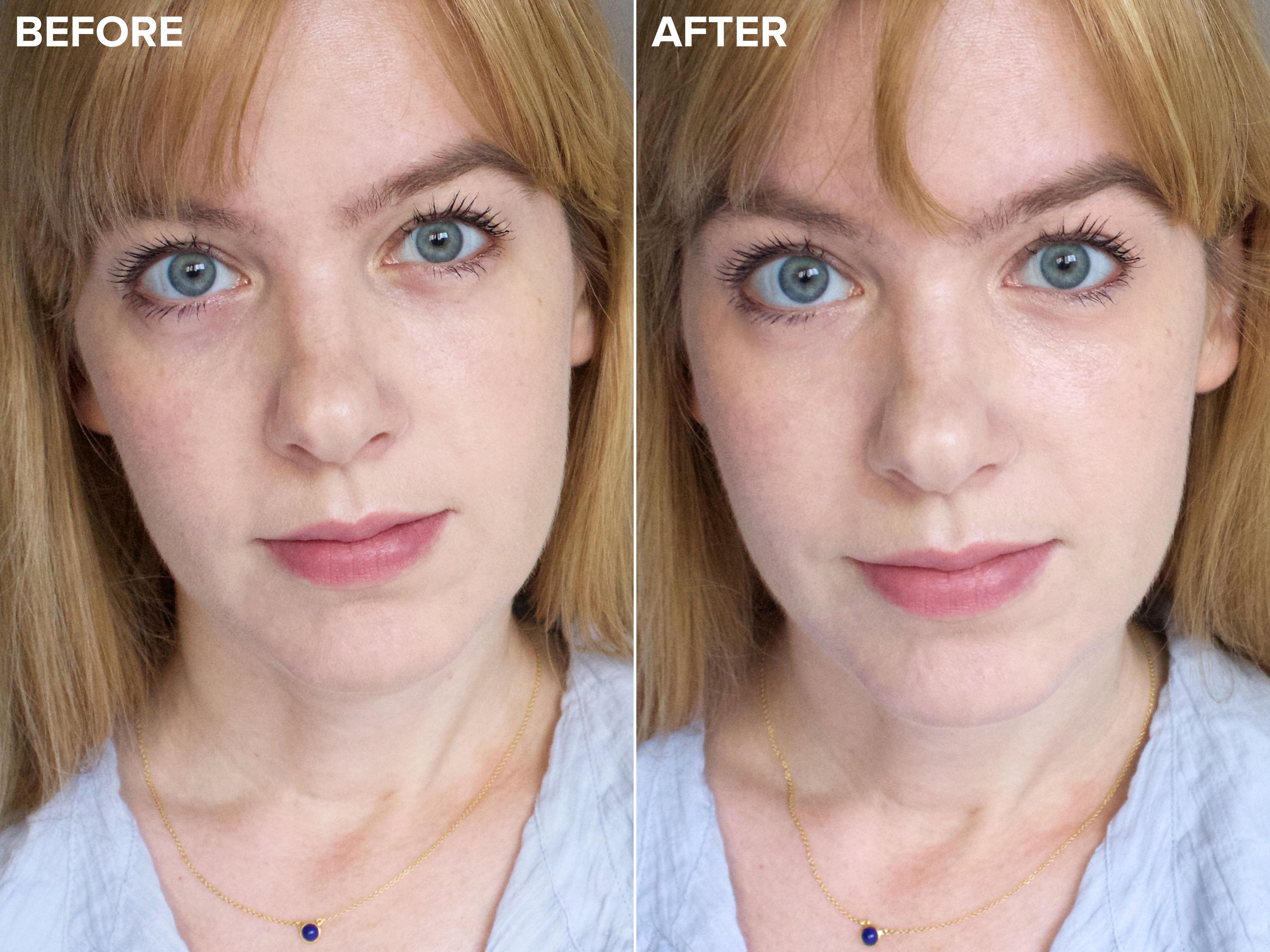 How to correct dark circles