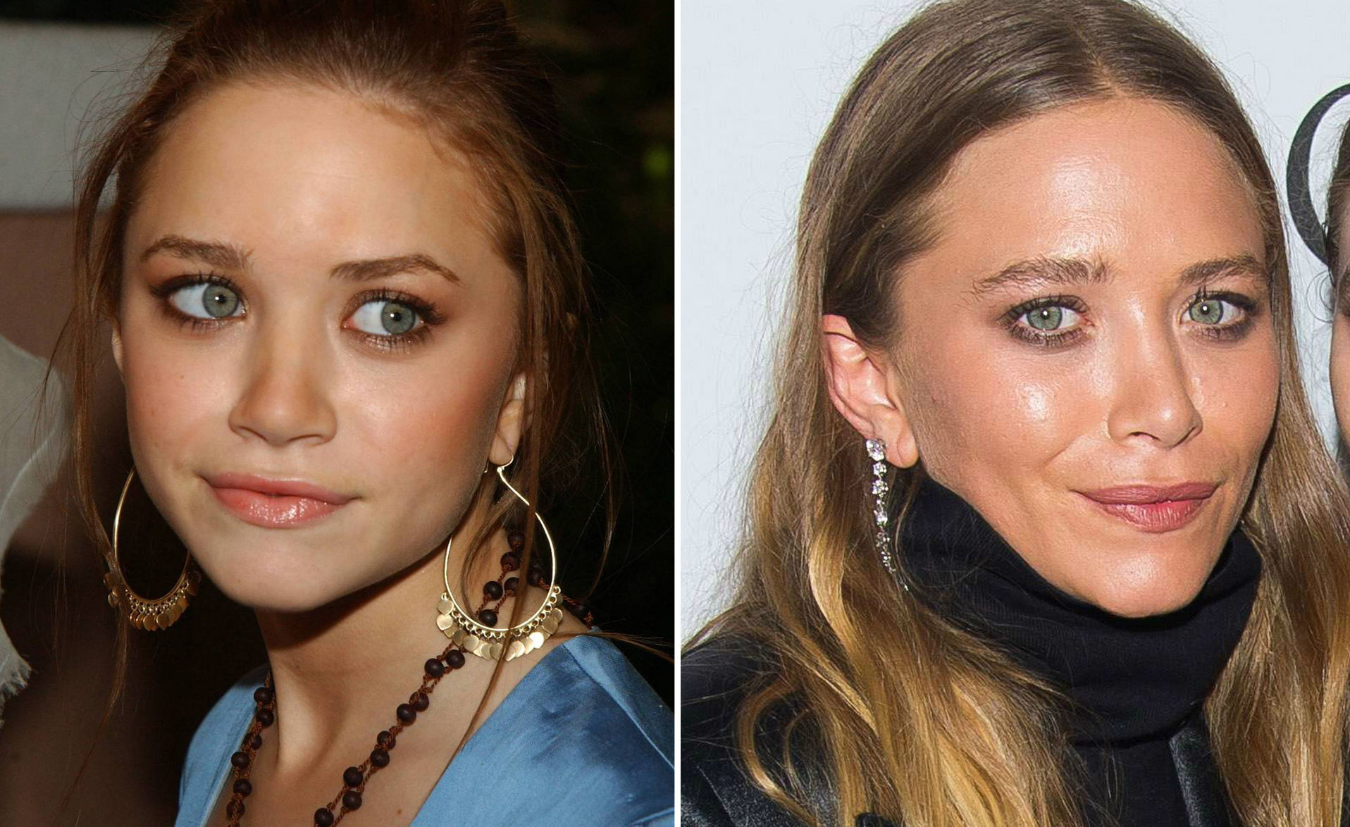 Mary-Kate Olsen before and after