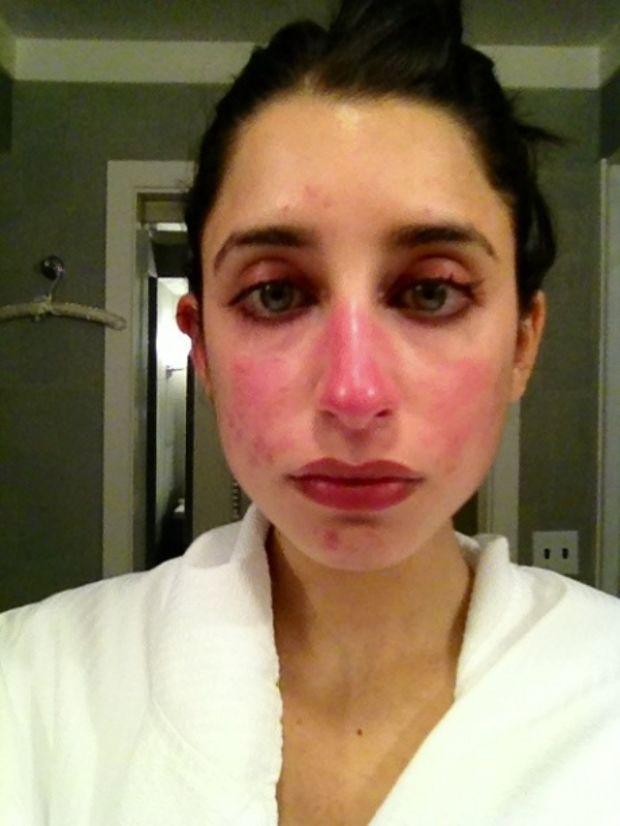 Bad Rash After Drinking Wine
