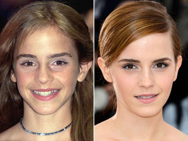 Emma Watson Nose Job Emma Watson, Before an...
