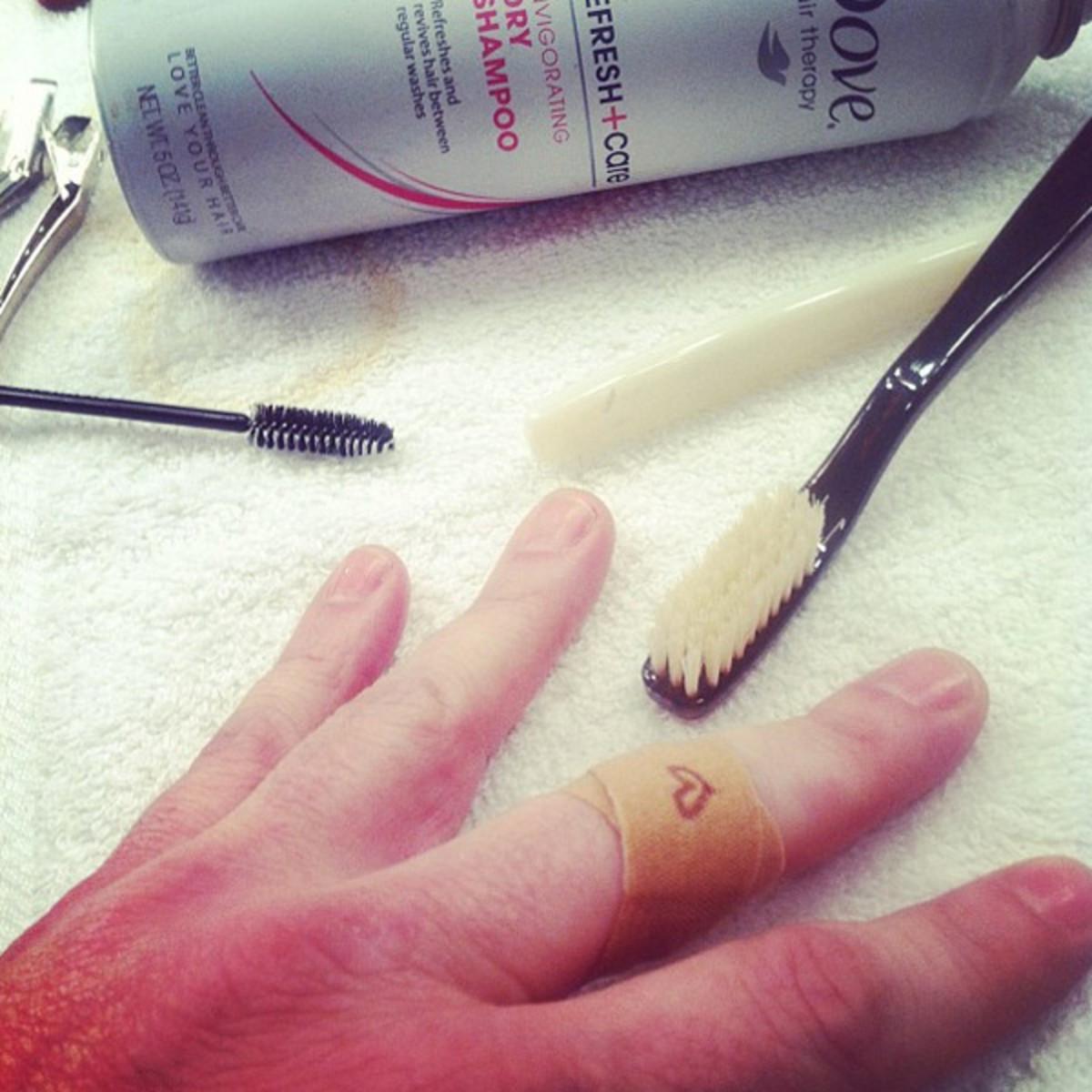 Mark Townsend cut finger