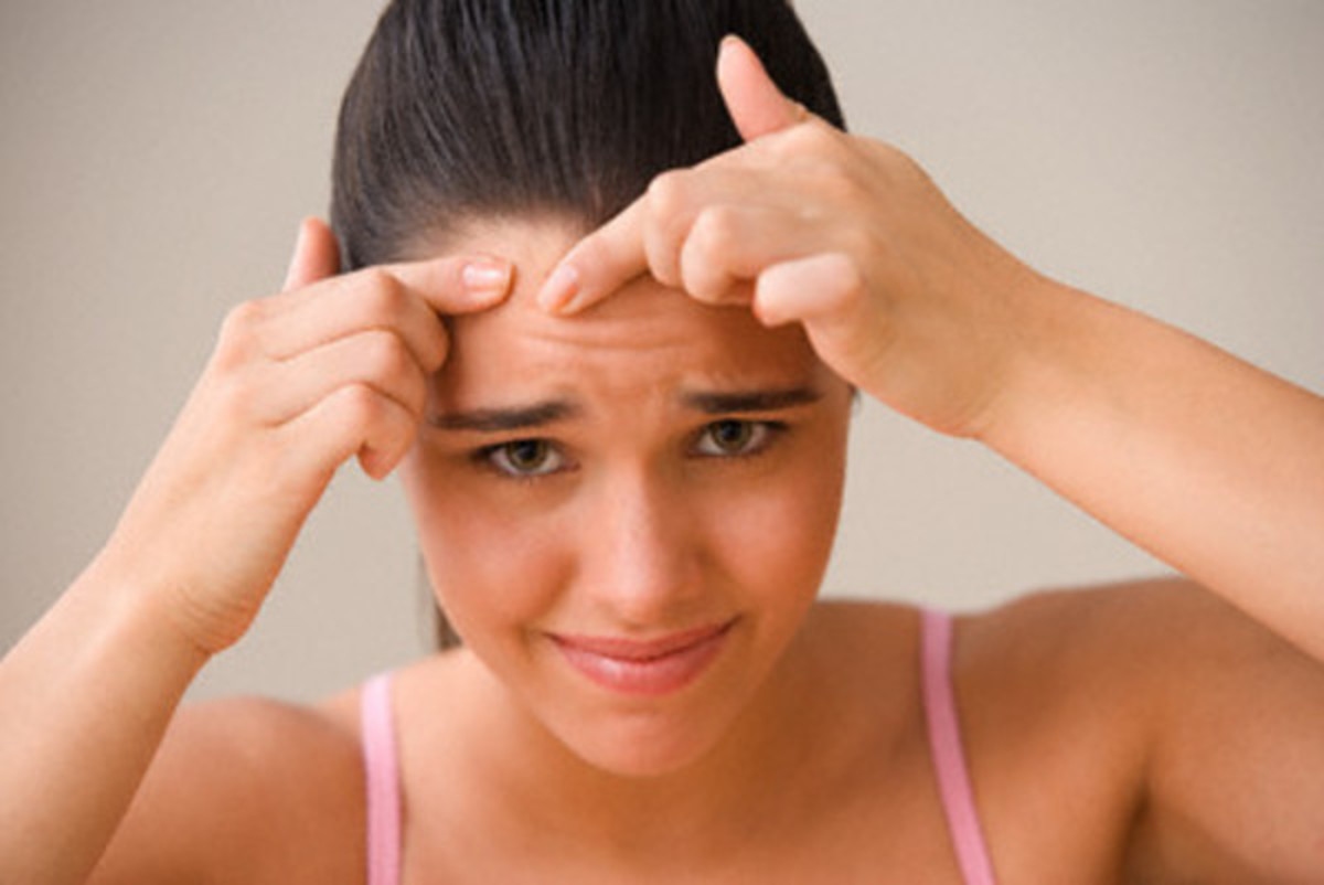 woman-with-pimple1