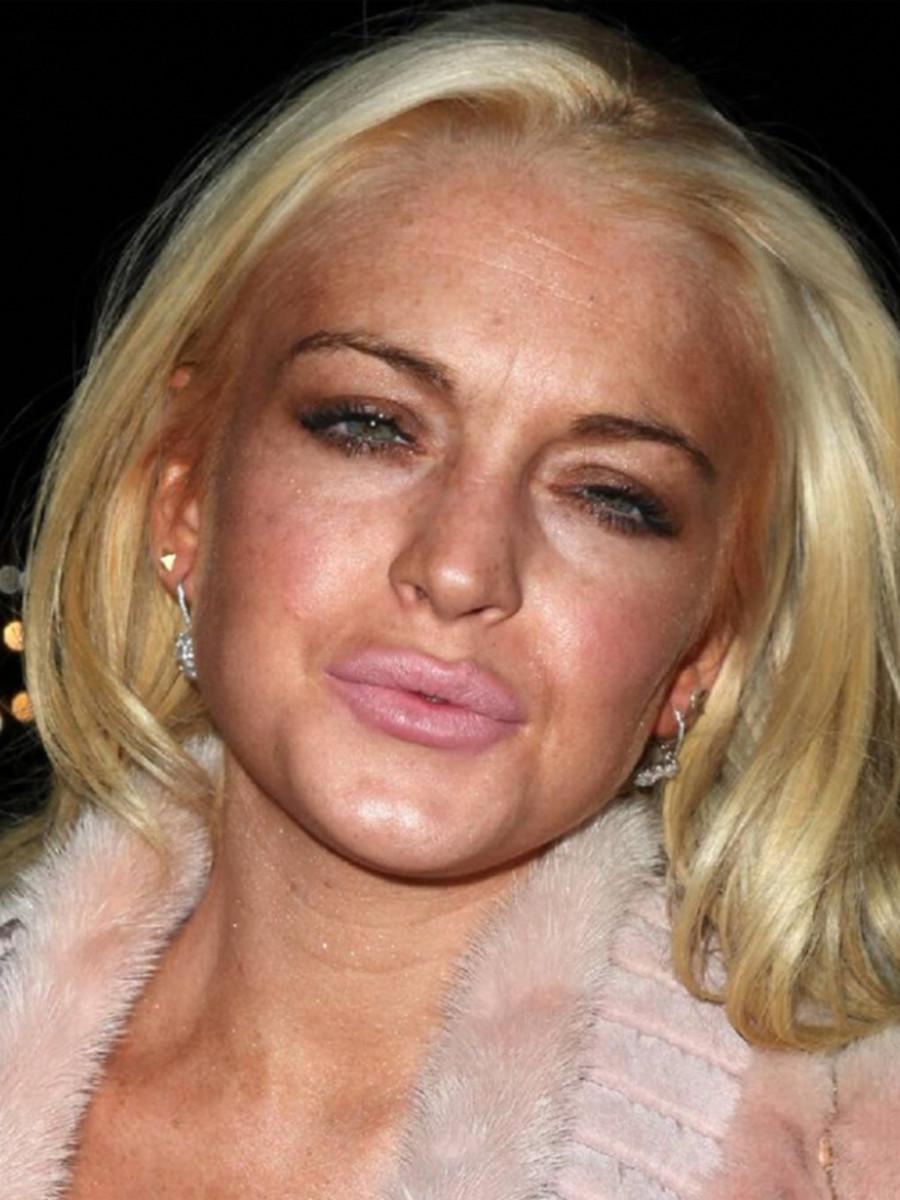 Lindsay Lohan lip injections
