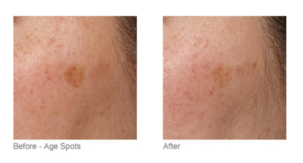 Tria Skin Rejuvenating Laser before and after (1)