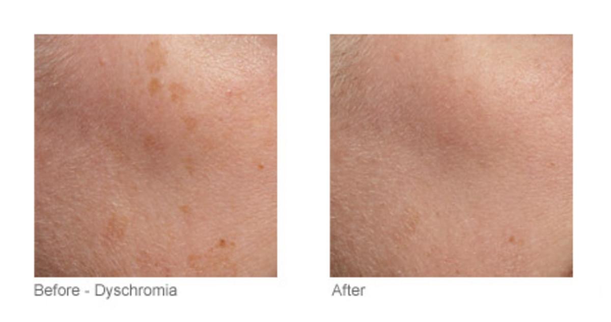 Tria Skin Rejuvenating Laser before and after (2)