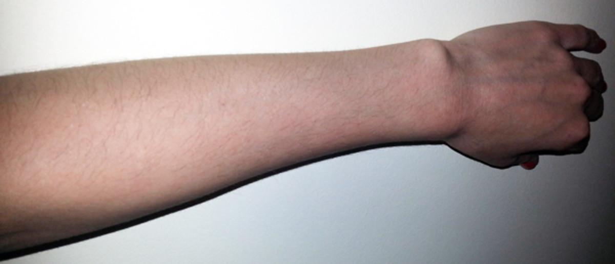 Lori's arm before