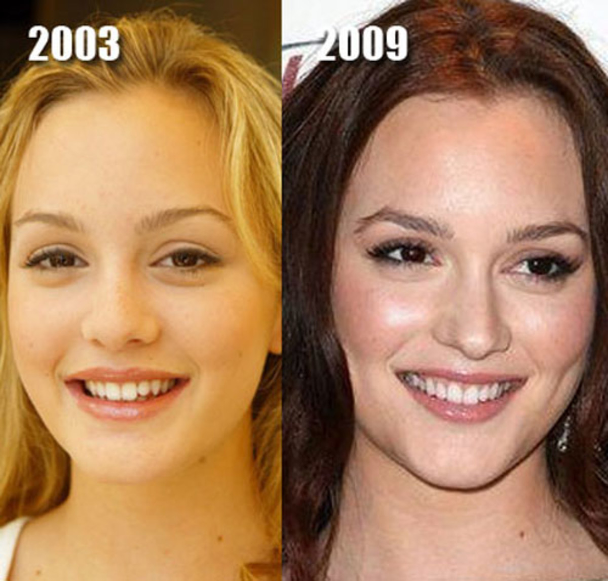 Leighton-Meester-before-and-after
