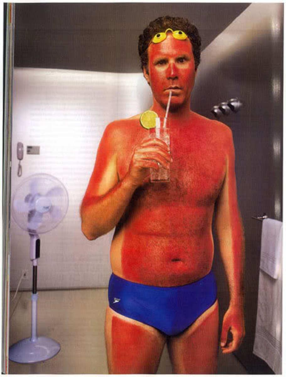 Will Ferrell sunburn