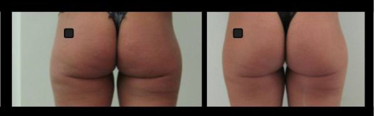 Liposonix-before-and-after