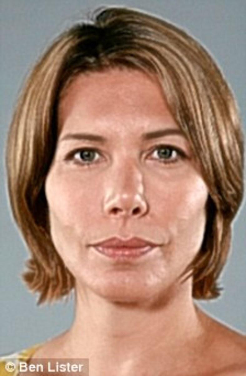 Leah-Hardy-Botox