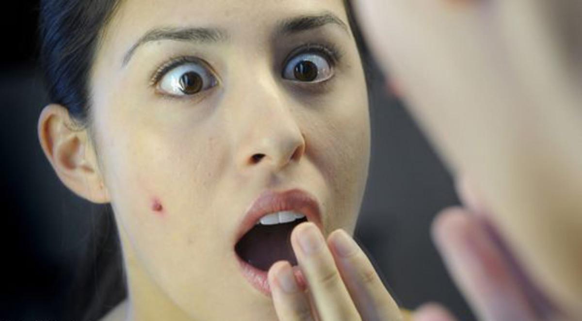 acne-emergency