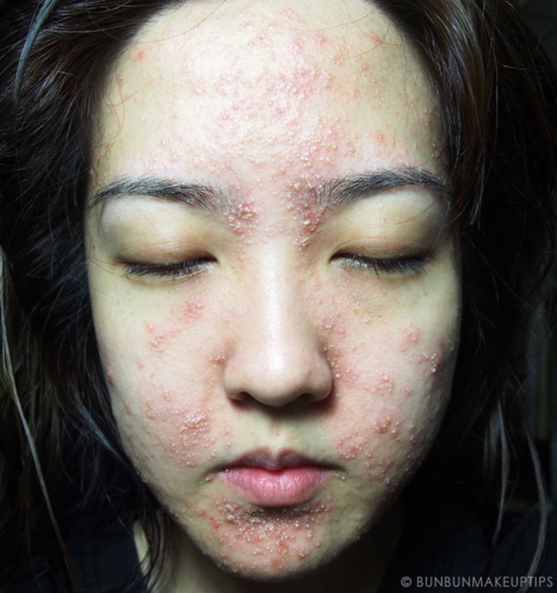Worst facial in the world - day 4