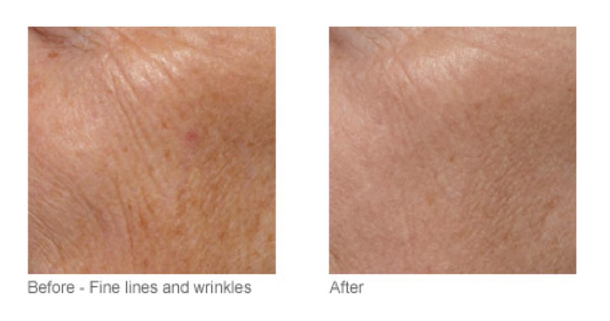Tria Skin Rejuvenating Laser before and after (3)