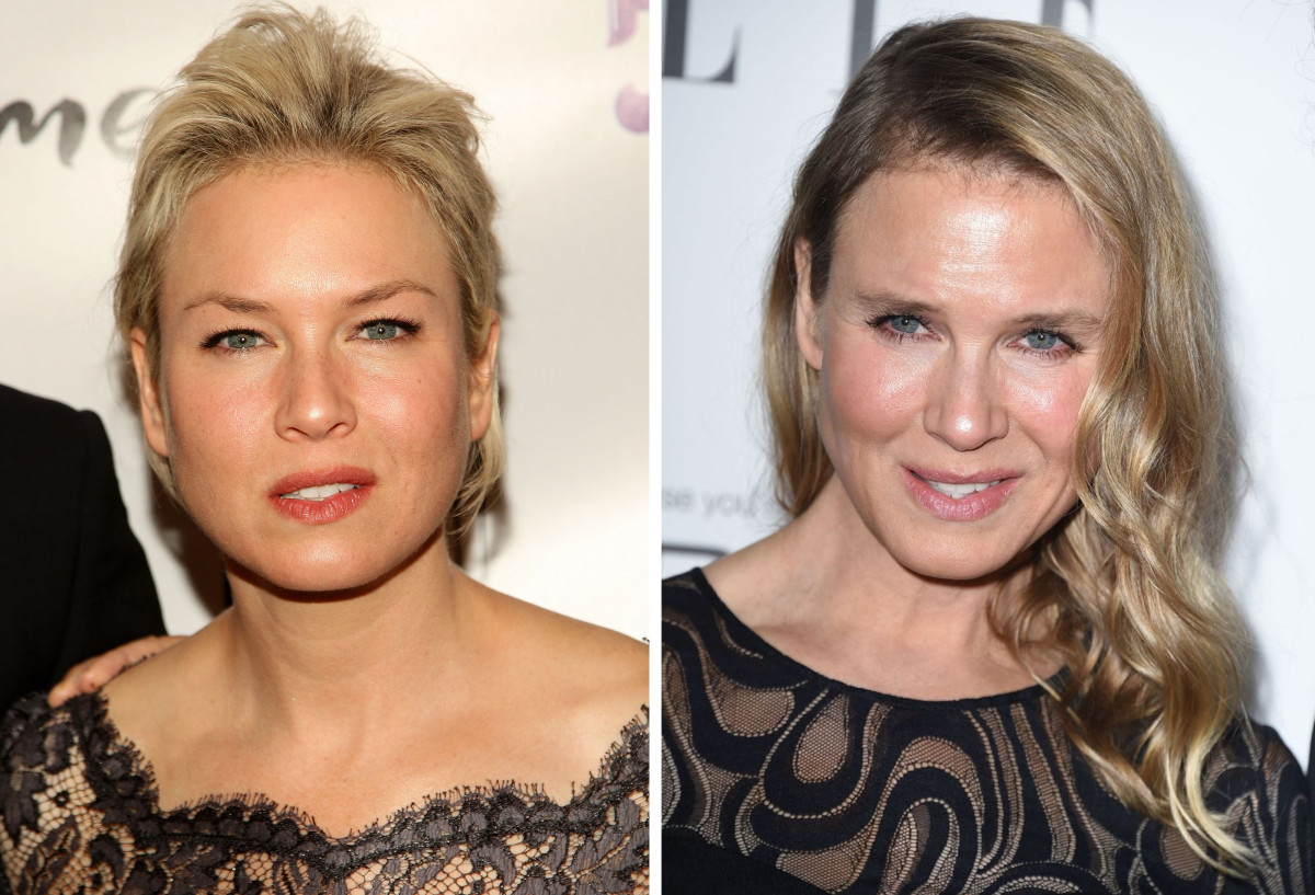 What Ren 233 E Zellweger Did To Her Face According To Plastic