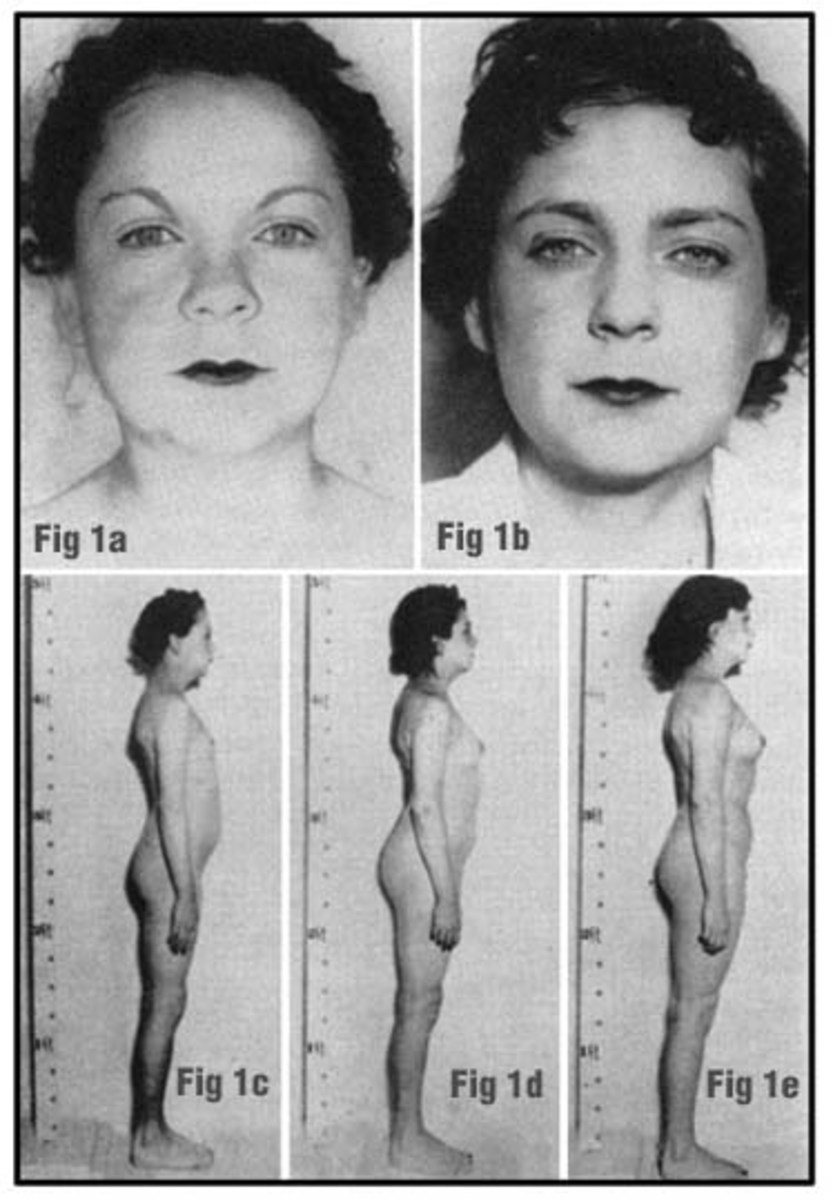 Hypothyroidism before and after female