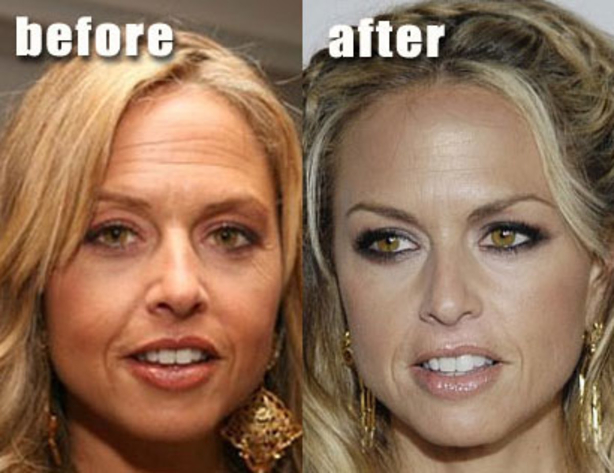 Rachel-Zoe-before-and-after