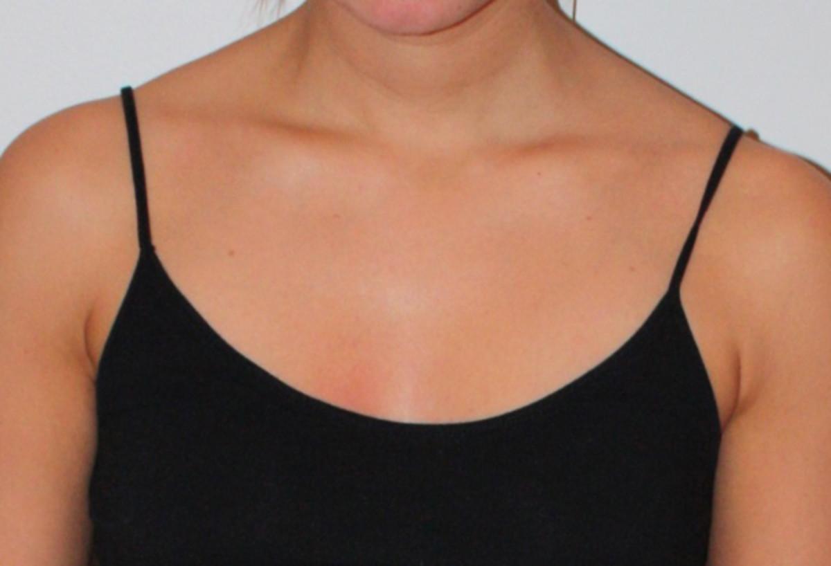 St. Tropez spray tan after
