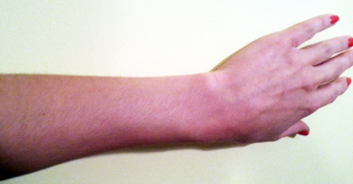 Lori's arm after