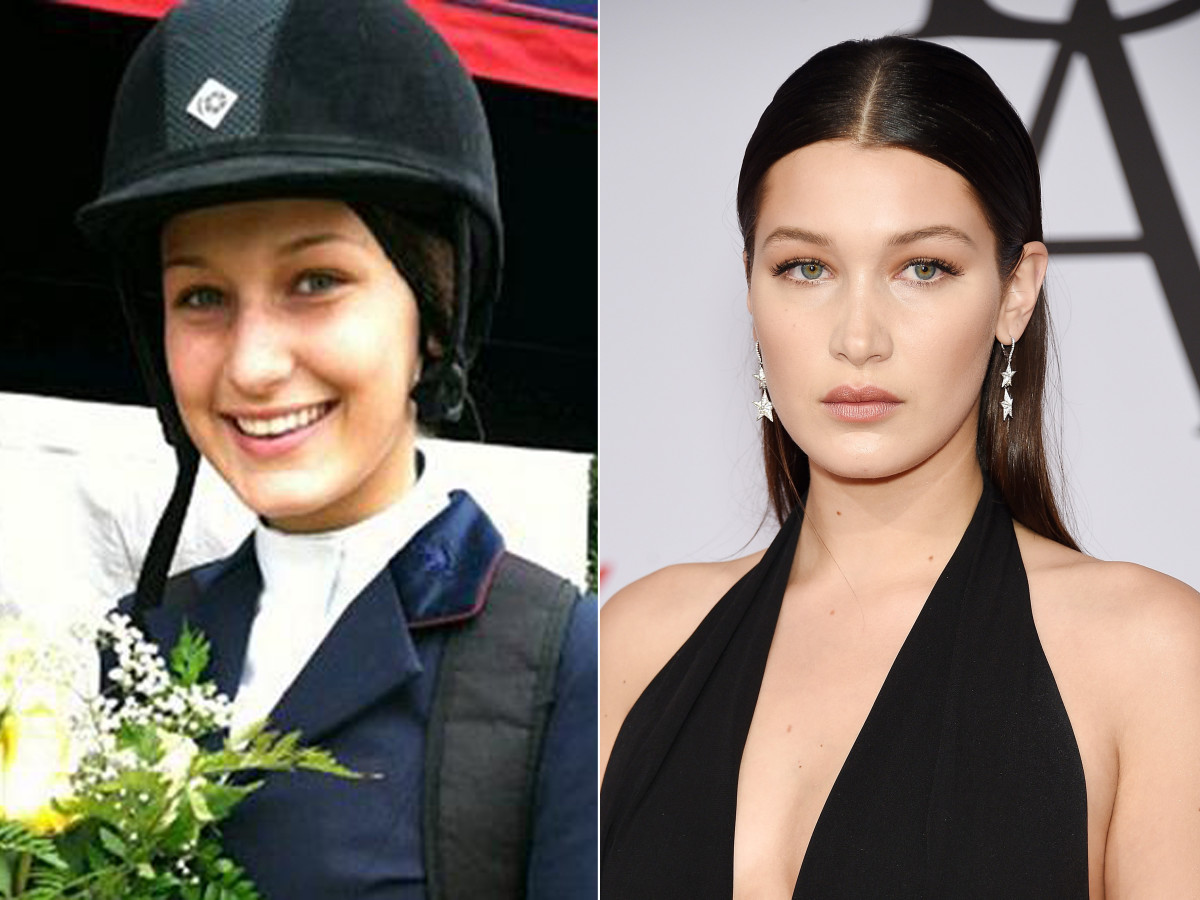 Bella Hadid before and after