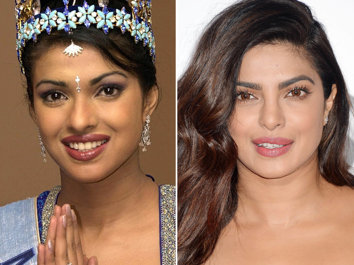 Image result for priyanka chopra plastic surgery