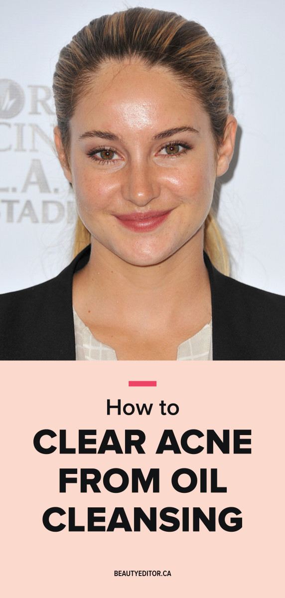 How to clear acne from oil cleansing