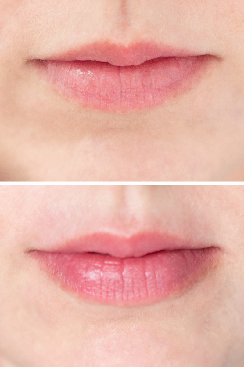 Lip plumper tool before and after