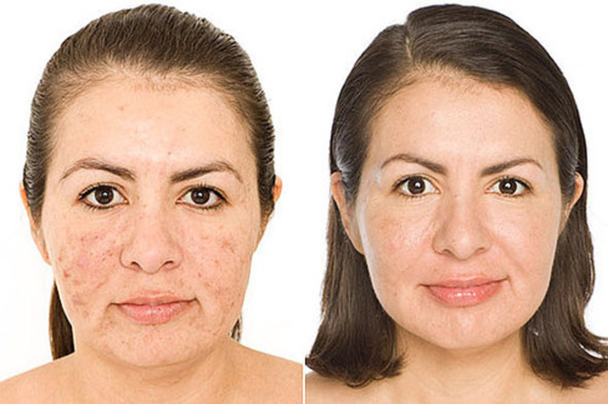 Kate Somerville before and after