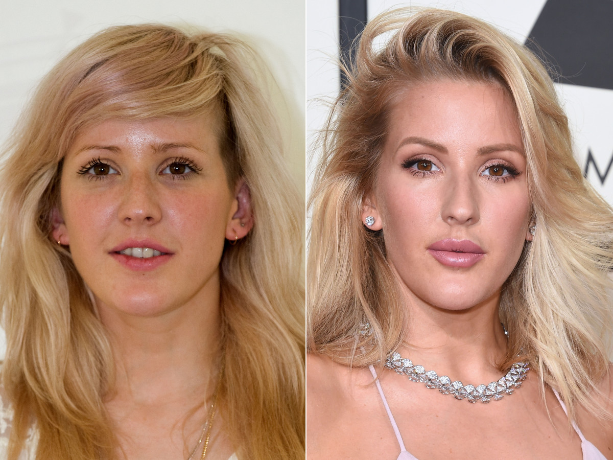 Ellie Goulding before and after