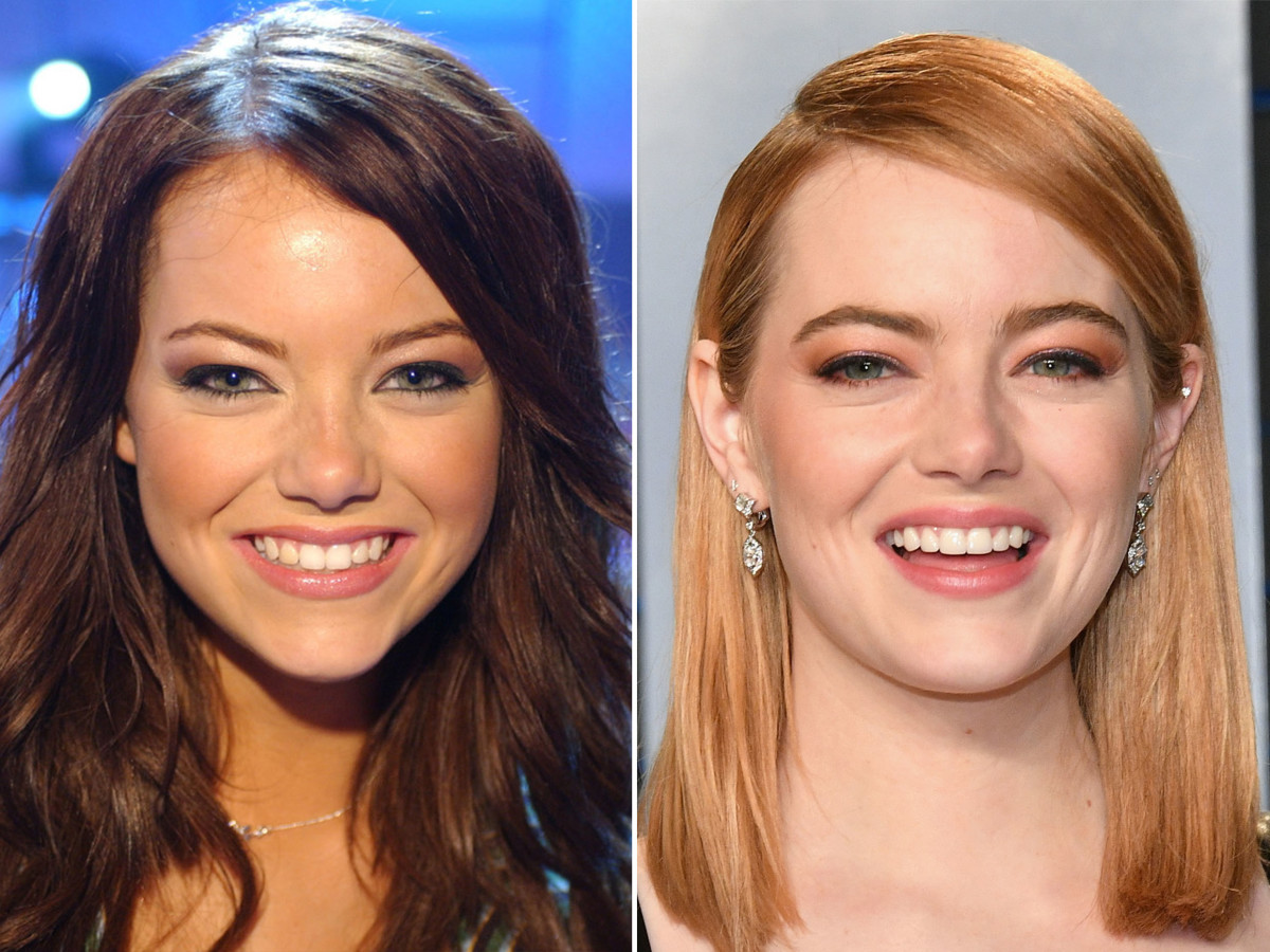 Emma Stone before and after