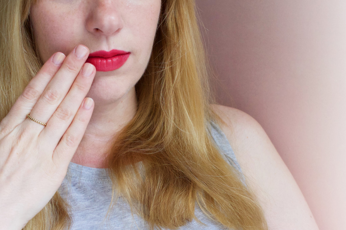 How to treat cold sores