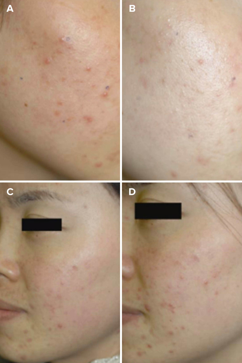 Red light therapy before and after - Na et al. 2007