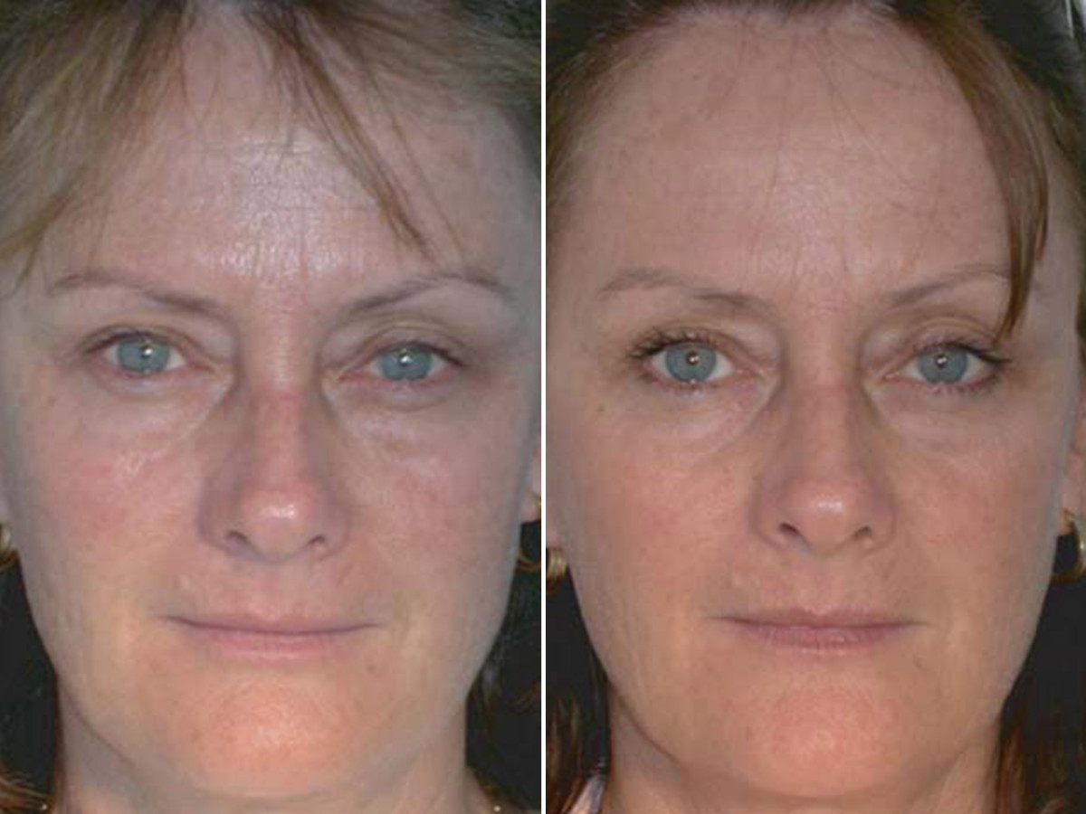 Red light therapy before and after - Baez et al. 2007