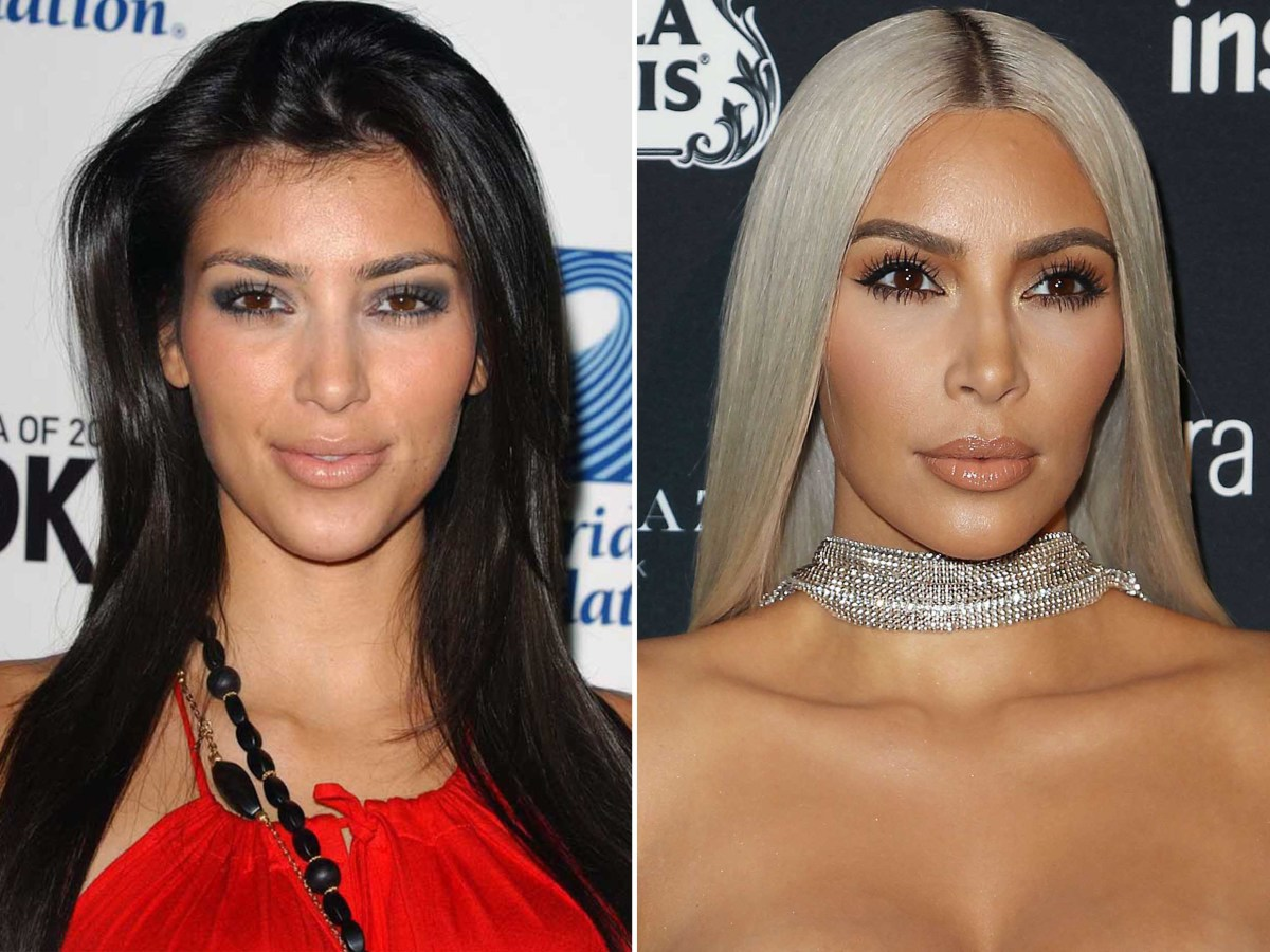 Kim Kardashian before and after