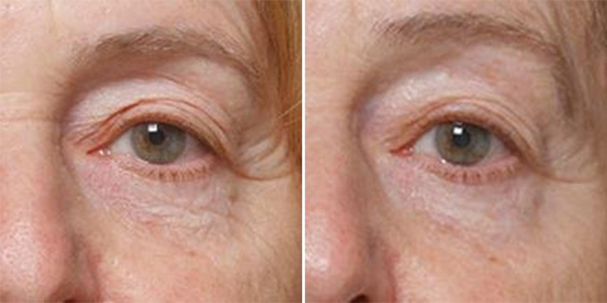 Iluminage Eye Mask before and after