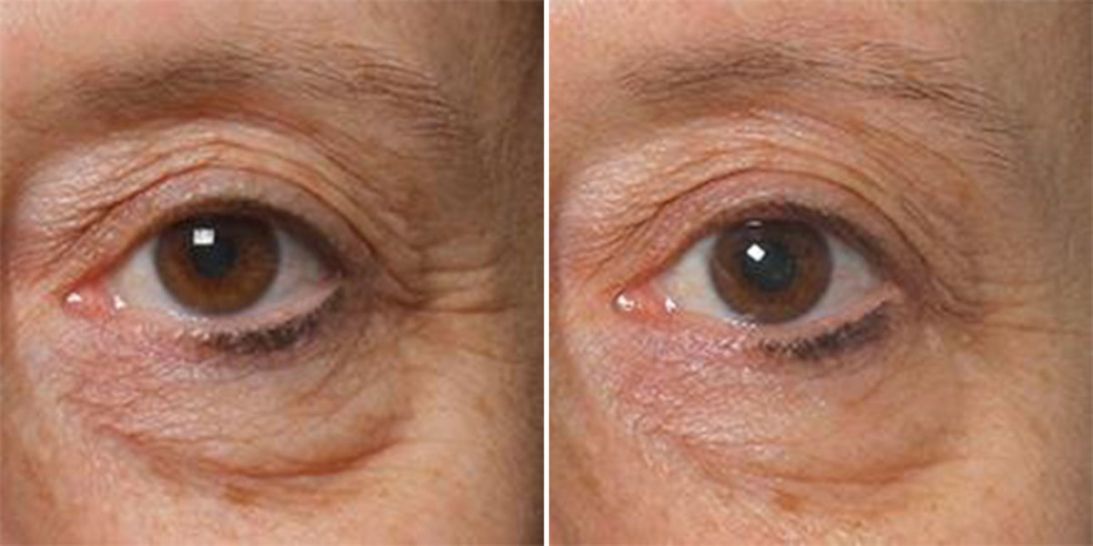 This Eye Mask Is Actually Proven to Fight Wrinkles ...